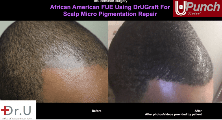 Side view of temples and hairline advancement, before and after patient's Dr.UGraft Intuitive FUE procedure