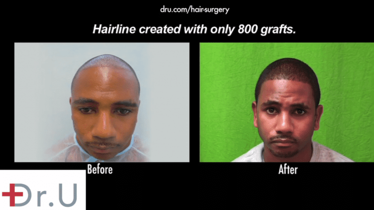 Patient's before and after photos show an improved hairline and temples, following his Intuitive FUE procedure