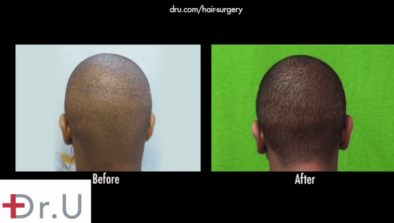 Before and after photos show patient's strip scar repair results, following his Intuitive FUE hair transplant for black patients