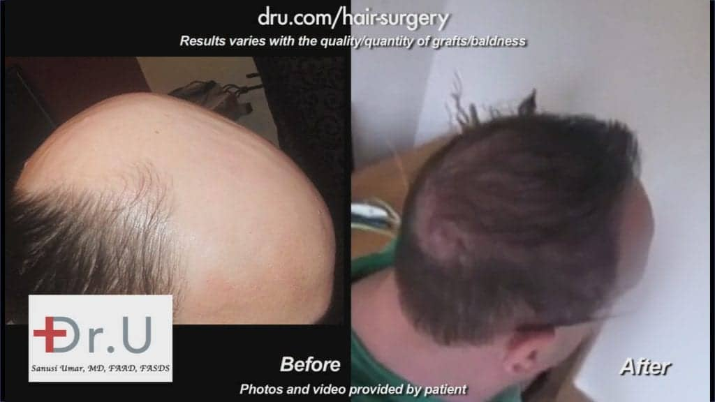 This severely bald patient experienced the Dr.UGraft™ advantage first-hand with an extraordinary outcome.*