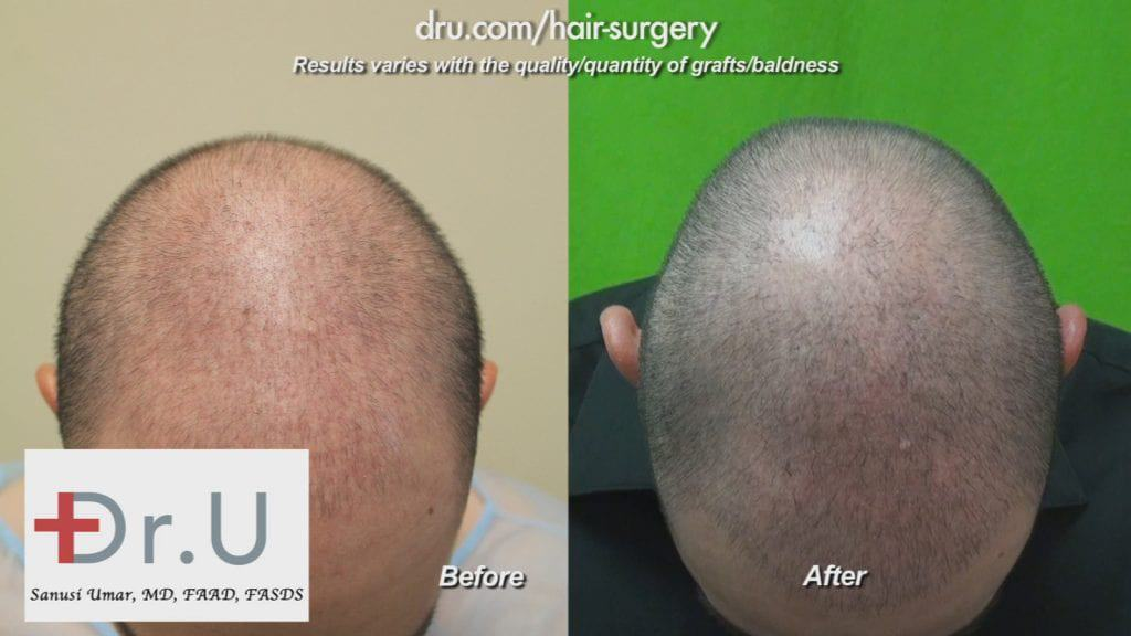 Hair transplant age 23: Hair Restoration Before and After using 2000 Dr.UGrafts