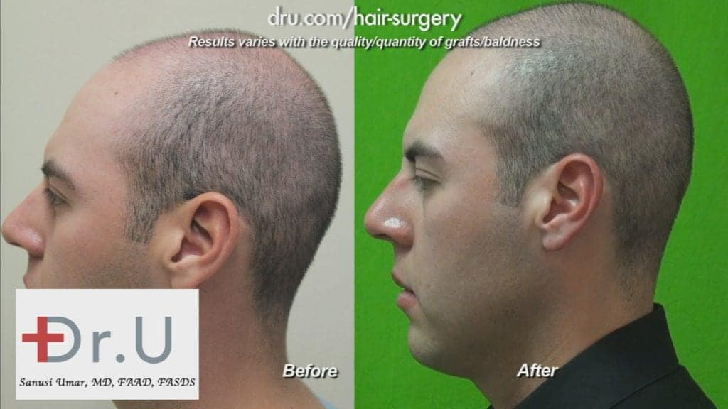 How young is too young for hair restoration: Young Hair Restoration Before and After