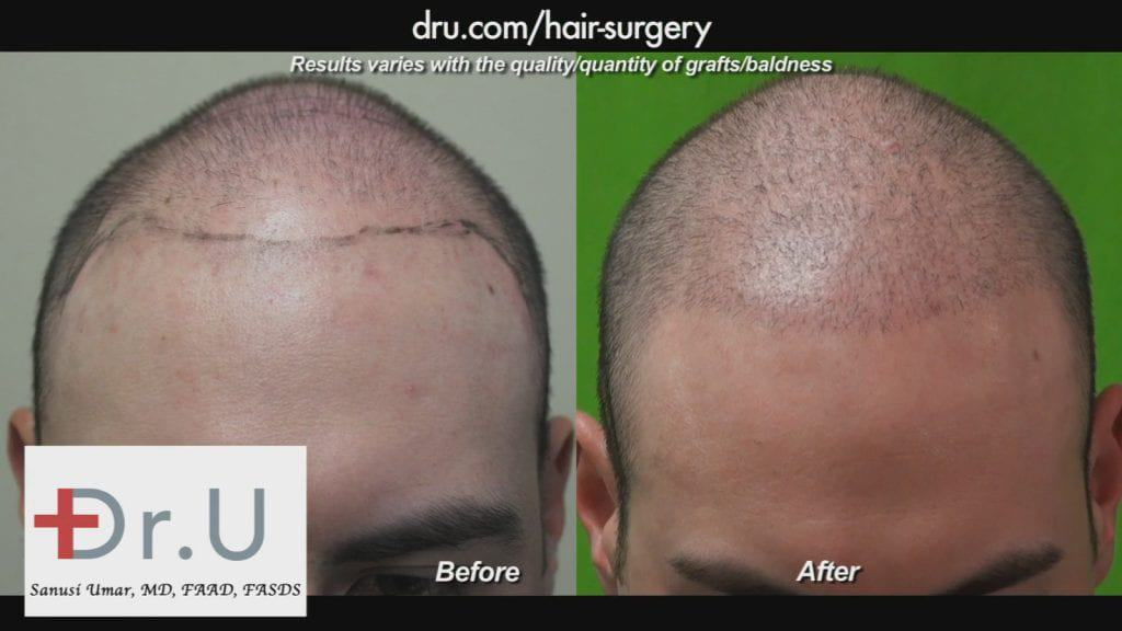 This young patient came to Dr. U for conservative coverage to regain his youthful look.*