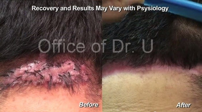 Dr. U surgically excised this patient's case of acne keloidalis nuchae, using his unique excision methods with suture assisted 2nd intention healing in order for the wound to heal into an aesthetically acceptable scar.