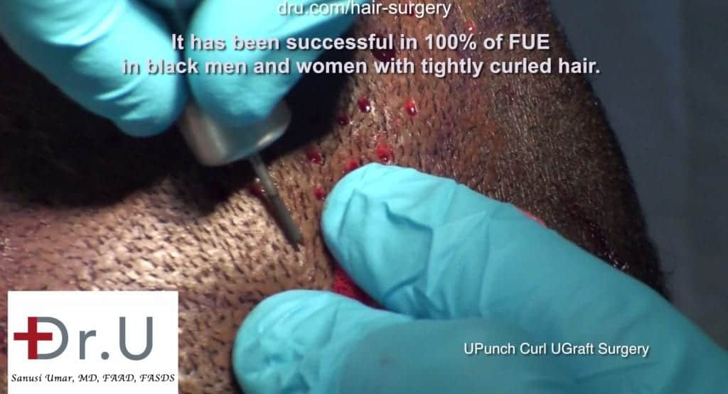 DrUPunch extraction of African American Curly Hair