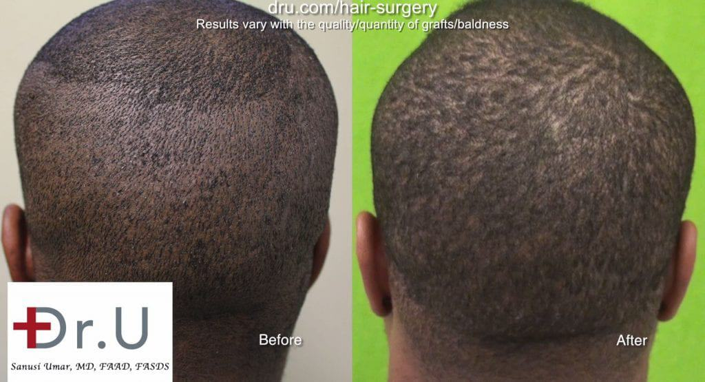 African American Curly hair FUE before and after