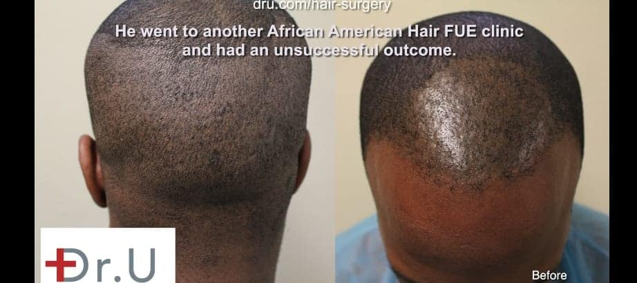 African American Curly hair UGraft FUE using 1400 grafts