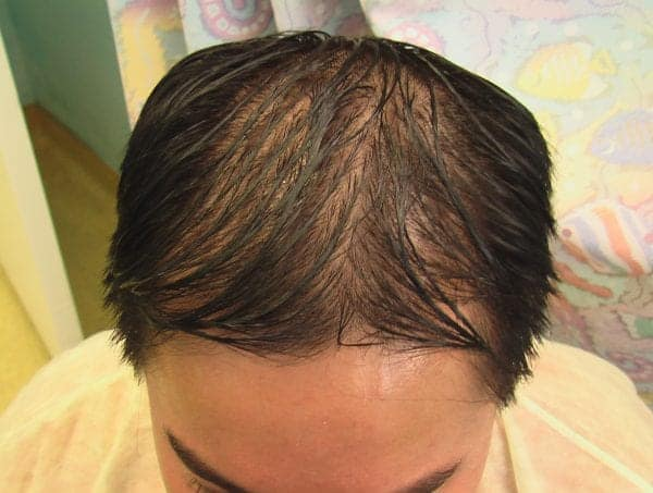 After a follicular unit strip surgery elsewhere this East Asian patient was not happy with a artificial looking hairline for which he seeks Dr Umar's help