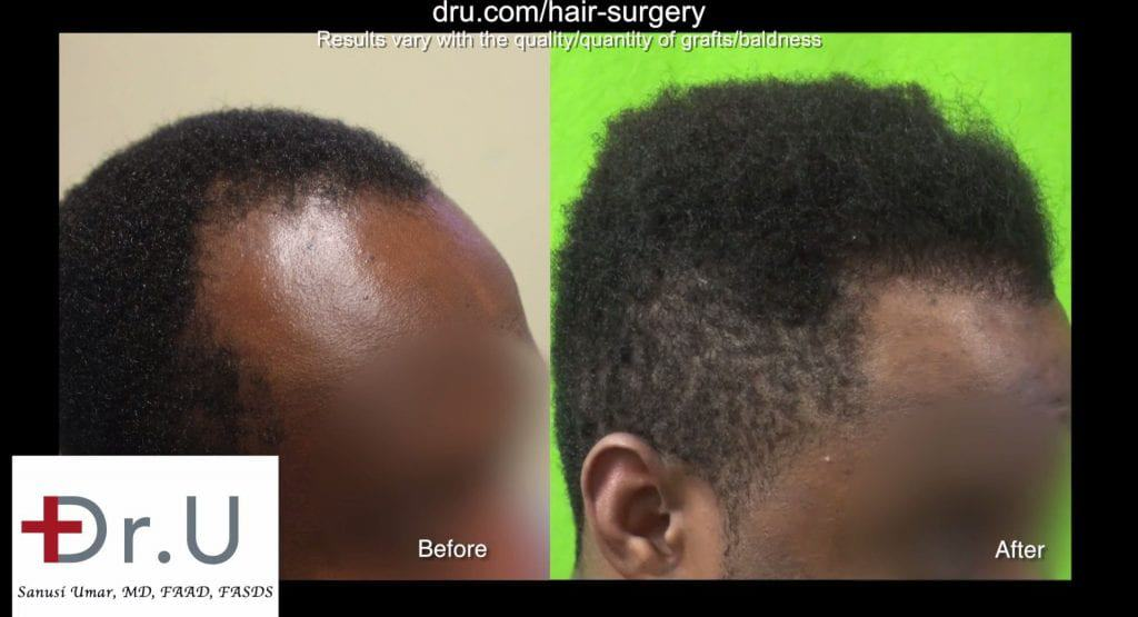 What is the success rate of FUE in Afro Textured hair without DrUPunch curl: FUE Afro-textured hair transplant surgery before and after.
