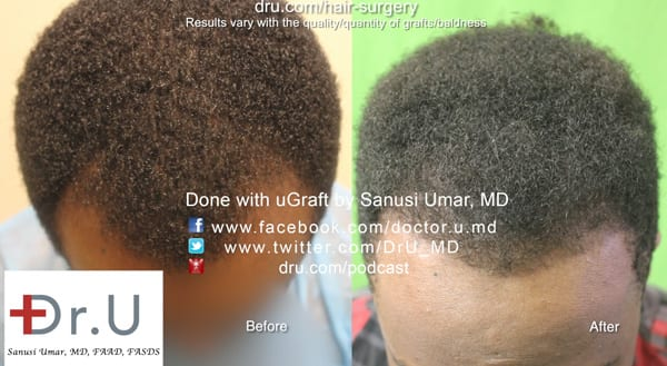 Dr. Umar used 1600 grafts for black hair restoration