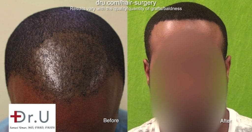 Before and after patient experienced Dr Umar's best FUE tool for black African hair transplant