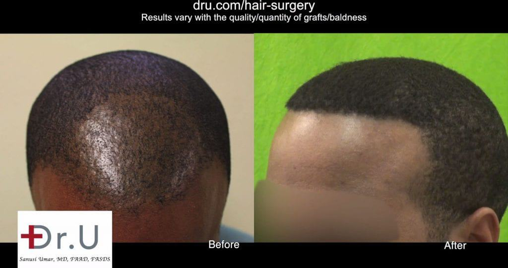 Why did another African hair FUE specialized clinic fail this patient? He required the specialized UPunch Curl tool
