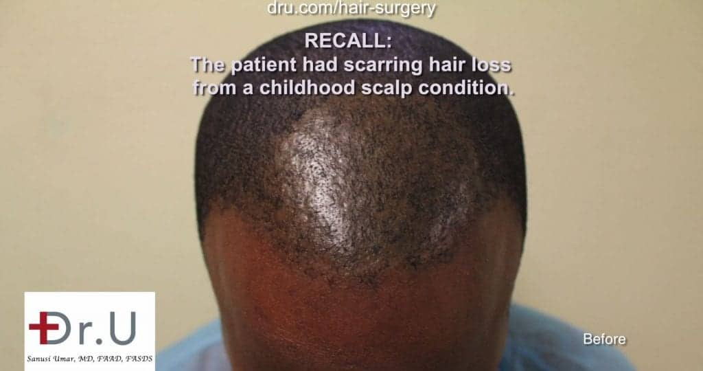 Why did another African Hair FUE specialized clinic fail in this patient?: Before discovering the BEST TOOL FOR FUE Hair Transplant for Black Men.