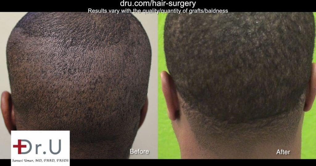Best Tool for FUE Hair Transplant for Black Men: The patient's donor area after undergoing Dr UGraft FUE.