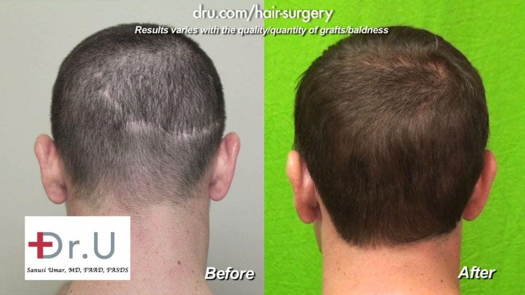 Patient wanted to get rid of his Follicular Unit Strip Surgery scar and ended up choosing Follicular Unit Extraction (FUE) to accomplish this*