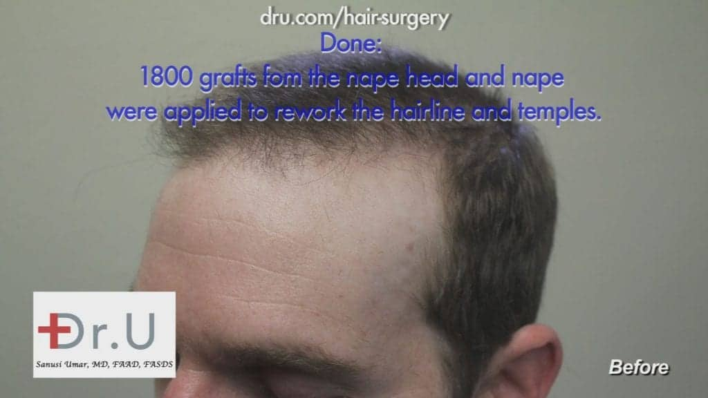 Before Advanced FUE Used to Restore Hairline and Temples