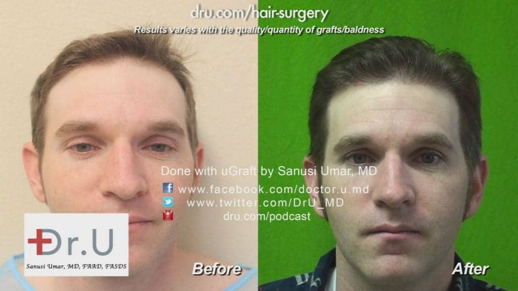 Norwood 3 hair loss restored with 2300 grafts Before and After Dr.UGraft Revolution