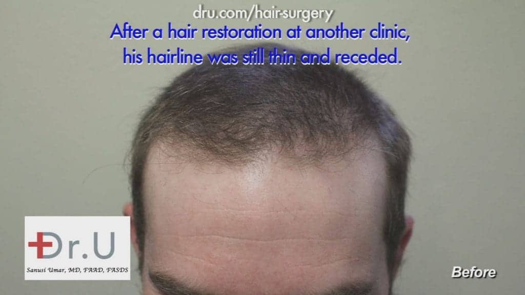 Receding hairline and crown - Before Advanced FUE