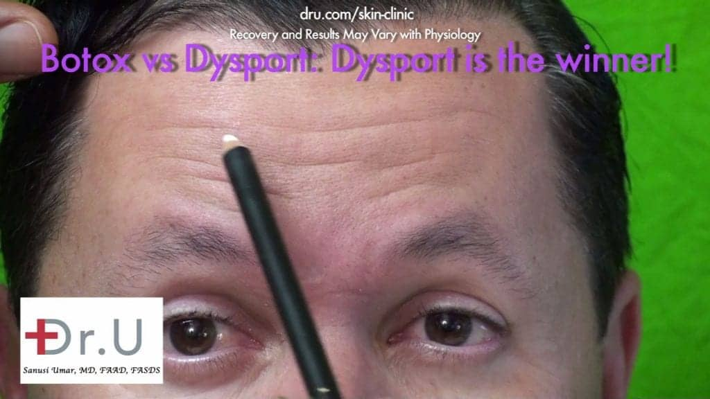 Positive Patient Results Hours After Dysport Injections