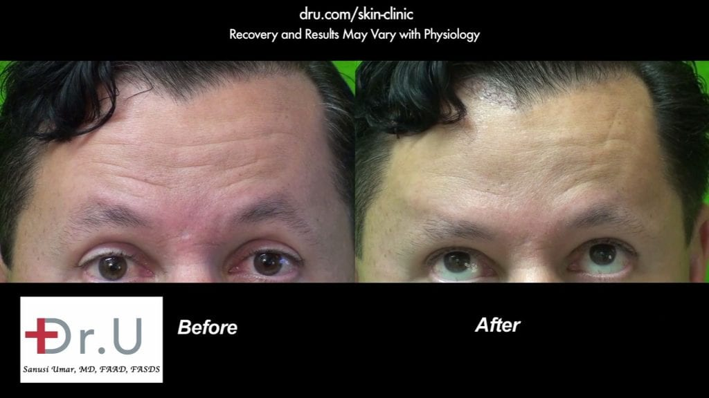 Before and after pictures of Dysport injections for frown lines. The patient was happy with his choice of Dysport vs Botox . *