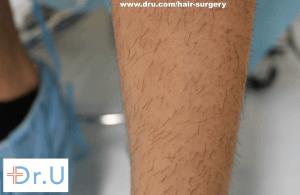 leg hair used for eyelash transplant