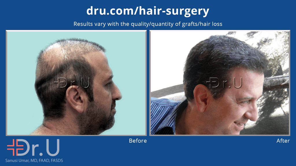 Dr.U's hairline for this repair patient gives him the normal and natural looking appearance he wanted for so long, after his botched hair transplant *