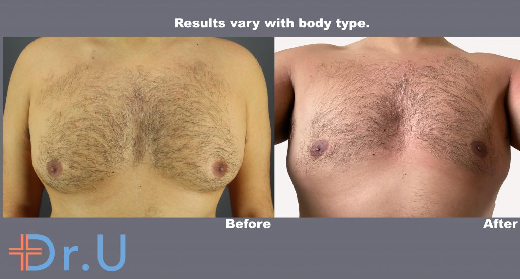 Radiofrequency assisted liposuction (RFAL) for gynecomastia gave this London patient a more masculine-looking chest without linear scarring