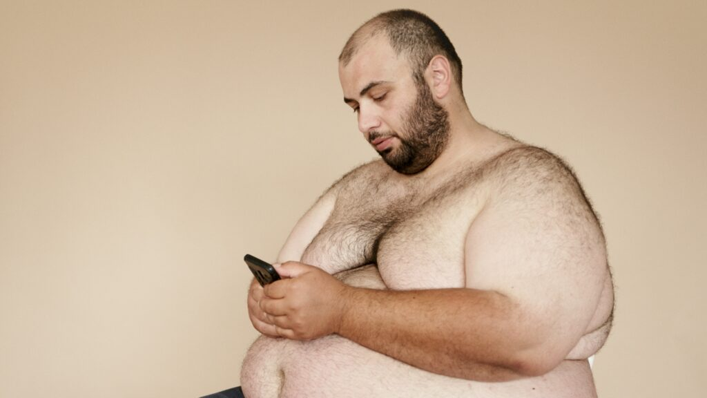 Obesity in males is the most common contributing factor to gynecomastia
