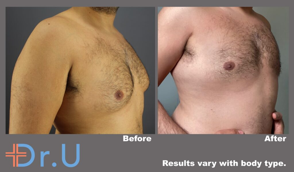 Three quarter's view from the right side showing a significant reduction of this patient's male breasts following his procedure *