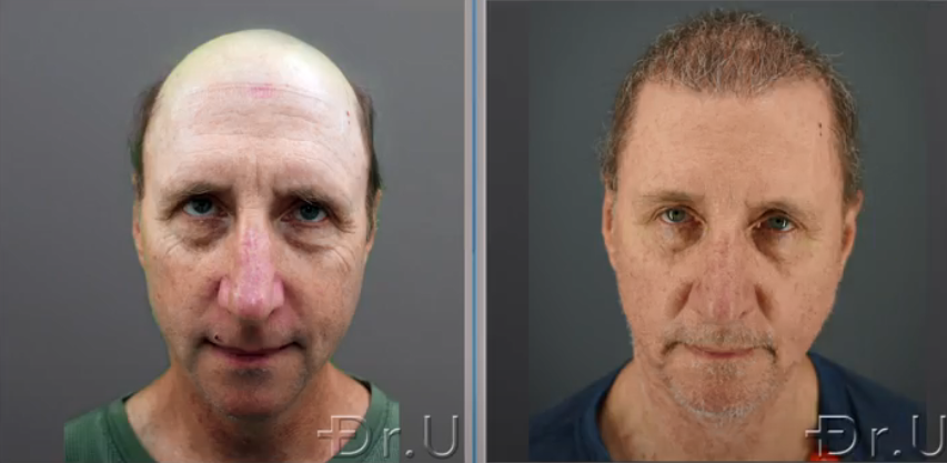 Before and after photos show the front view of Dr.U's patient at 8 months following his Dr.UGraft Zeus procedure