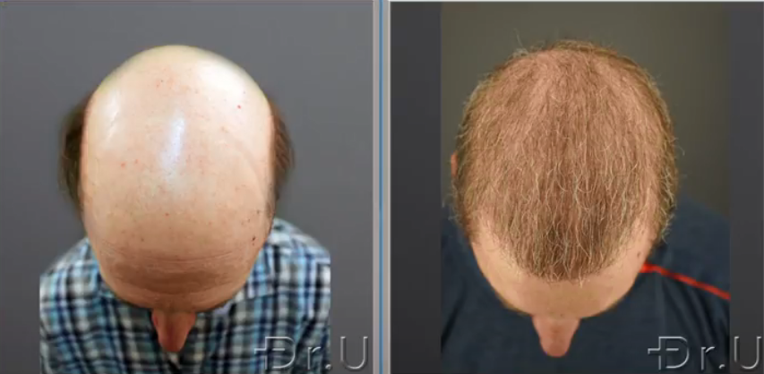 The top of this patient's head is no longer bald thanks to the prolific growth of his donor grafts