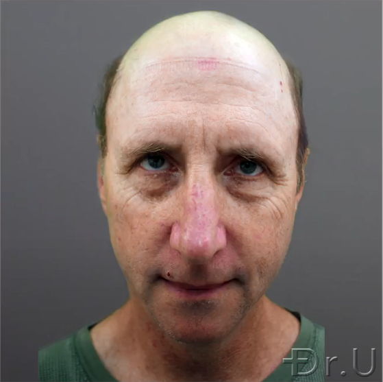 Front view of a severely bald patient who wishes to change his appearance through hair transplant surgery.