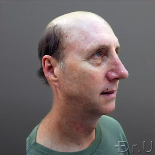 Side view of Dr.U's patient whose hair loss stage is worse than Norwood 7