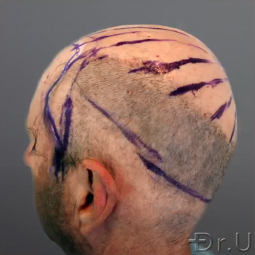 Dr.U marks off the directions and patterning of hair growth for this patient's final outcome